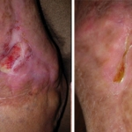 NeoGenesis Recovery for Wound Healing