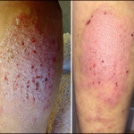 Before and After Pics for MF - Dermatitis - NeoGenesis Recovery Serum