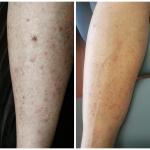 Chemo rash - Before and After - Recovery serum
