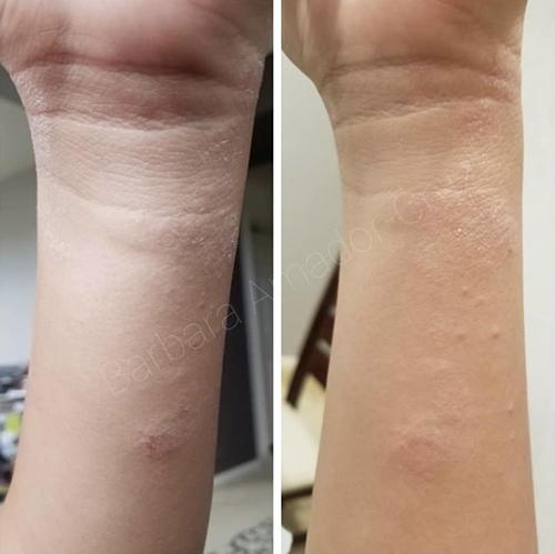 https://www.neogenesis.com/wp-content/uploads/2020/04/Hue-Beauty-Studio-Eczema.jpg
