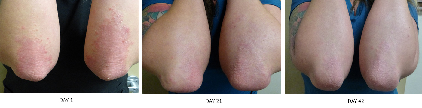 Before & After - NeoGenesis Skin Care Products for Psoriasis