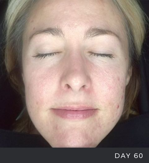 Before + After - Acne - 1