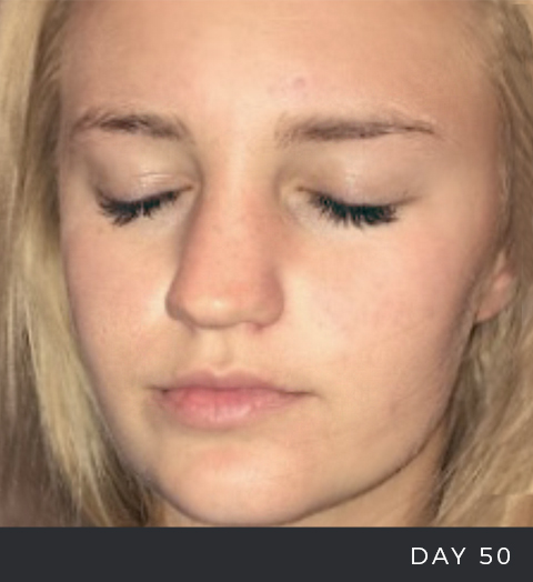 Before and After - Acne