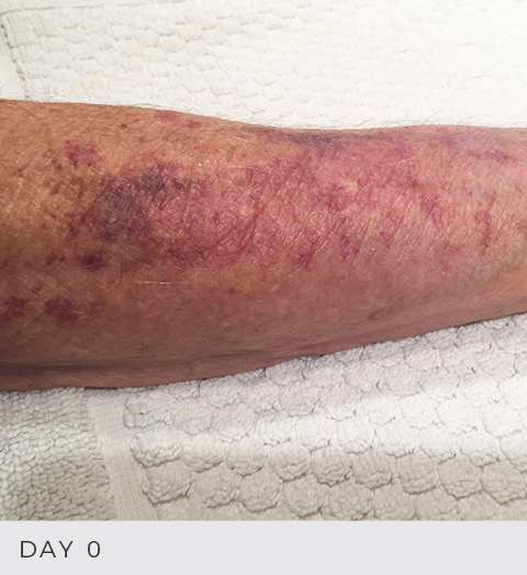Before and After - Actinic Purpura