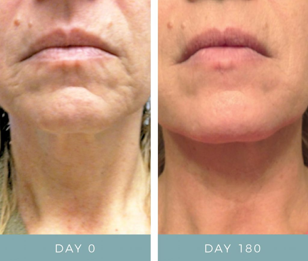 Before and After - Aging Skin