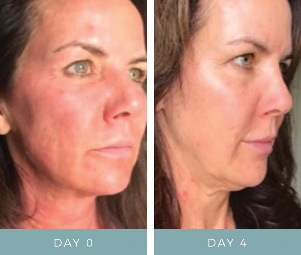 Before and After - Laser Treatmentt