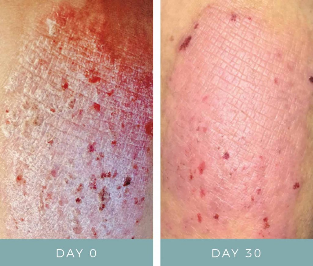 Before and After - Dermatitis