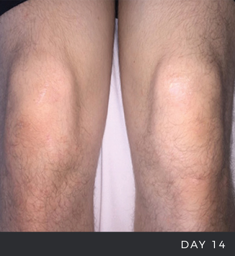 Before and After - Eczema