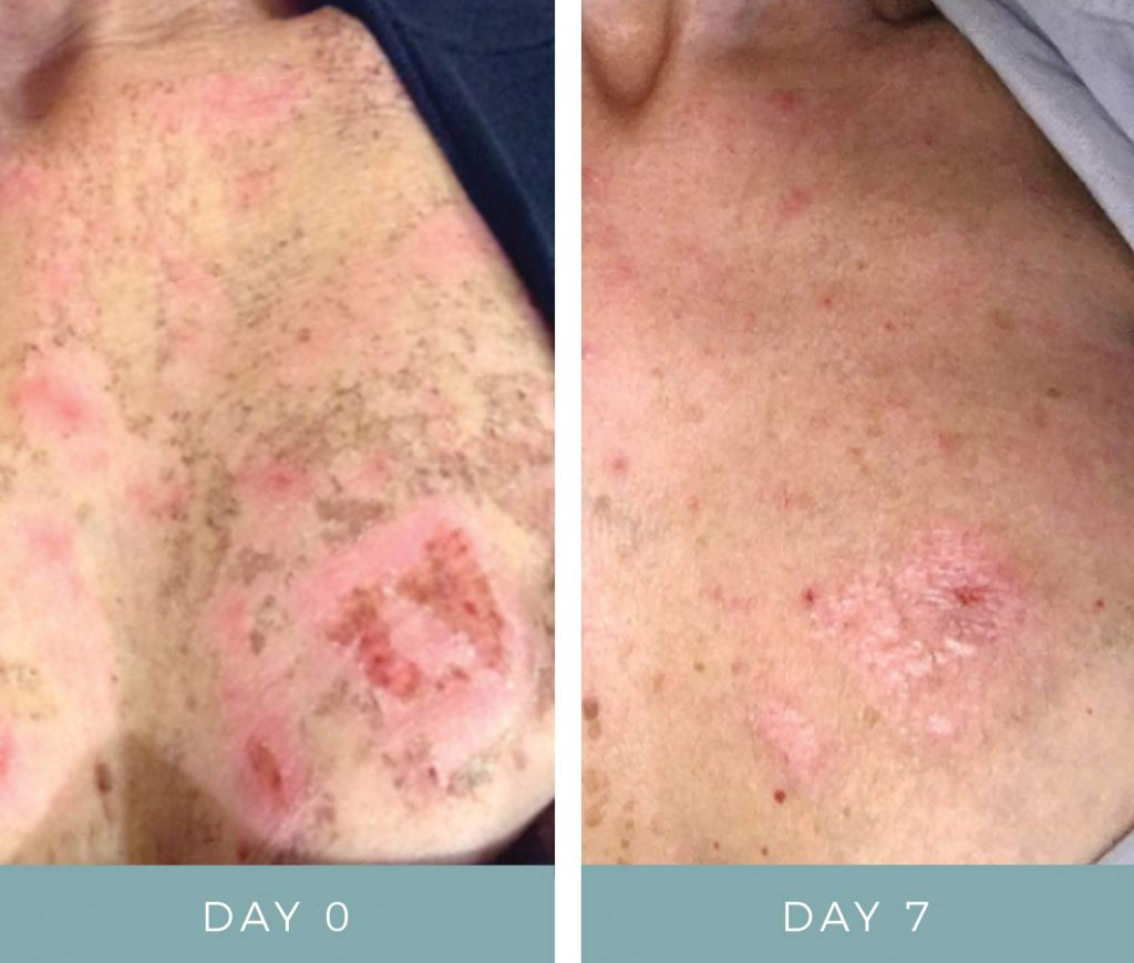 Before and After - IPL Laser Burn