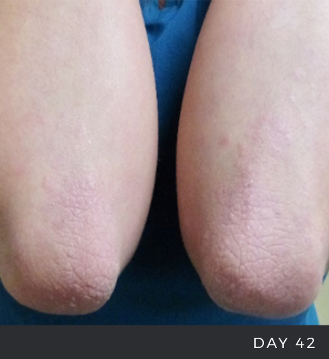 Before and After - Psoriasis