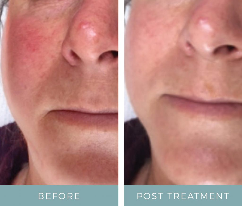 Before and After - Rosacea