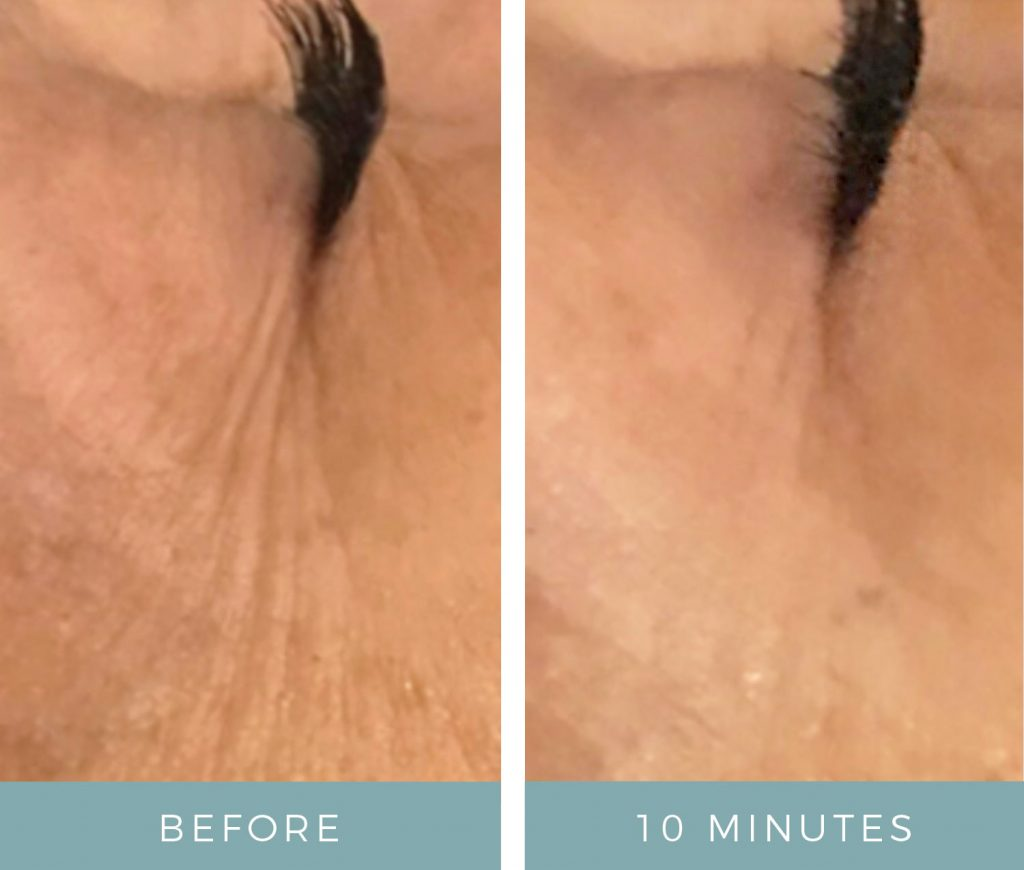 Before & After - Aging Skin