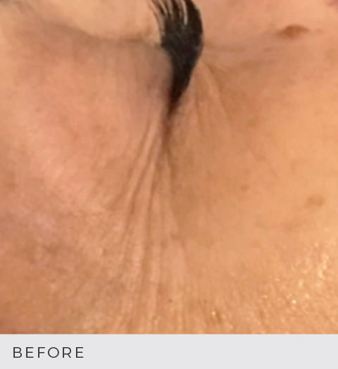 Before & After - Aging Skin - Crows Feet