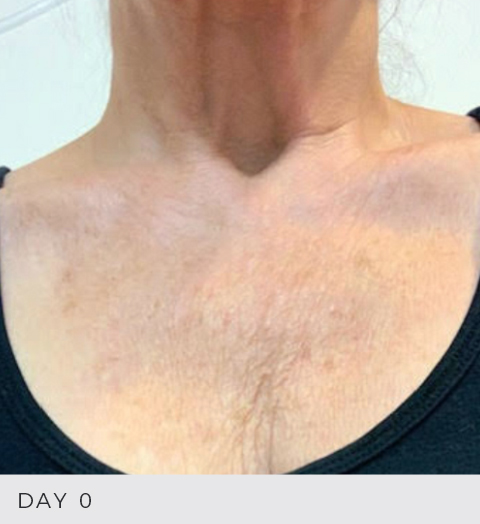 Before & After - Aging Skin - Decolette