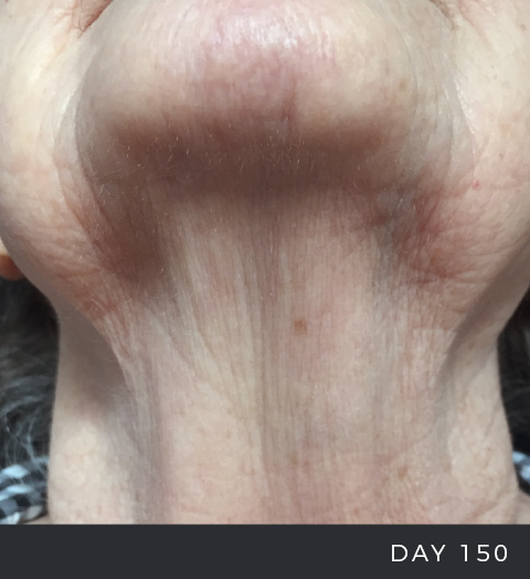 Before & After - Aging Skin - Neck