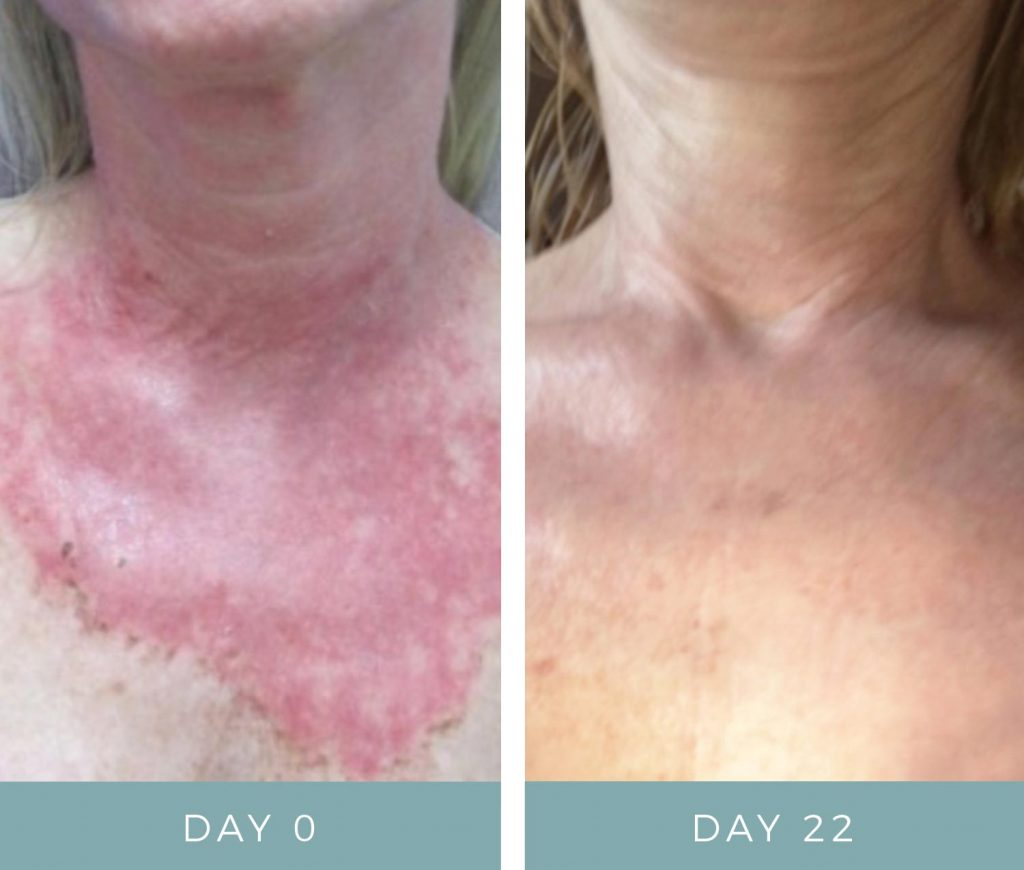 Before & After - Chemical Peel