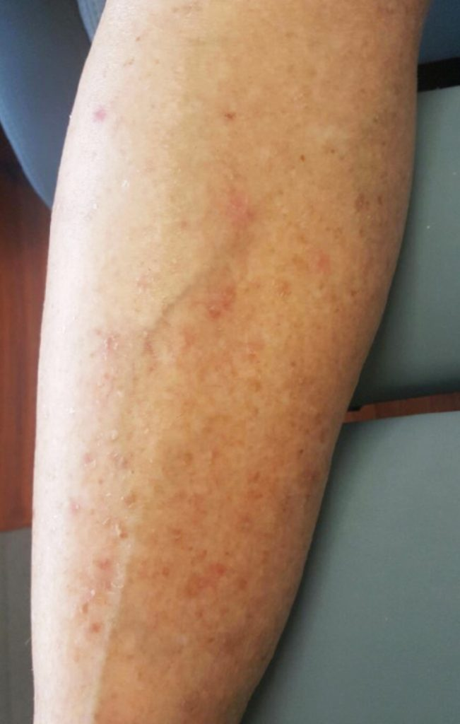 Before & After - Chemotherapy Rash