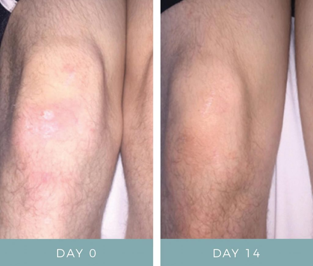 Before & After - Eczema