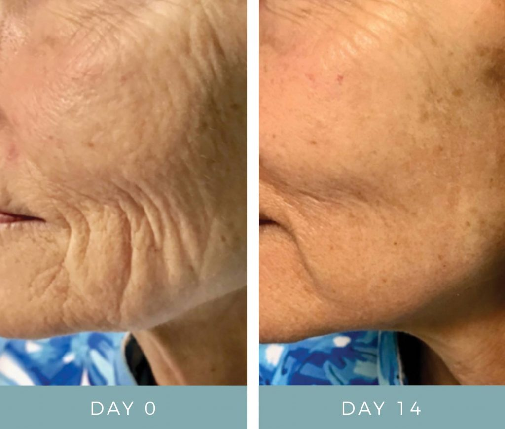 Before & After Fibroblast