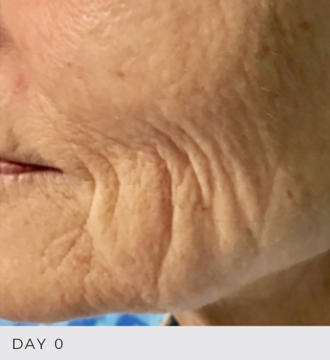 Before & After - Fibroblast