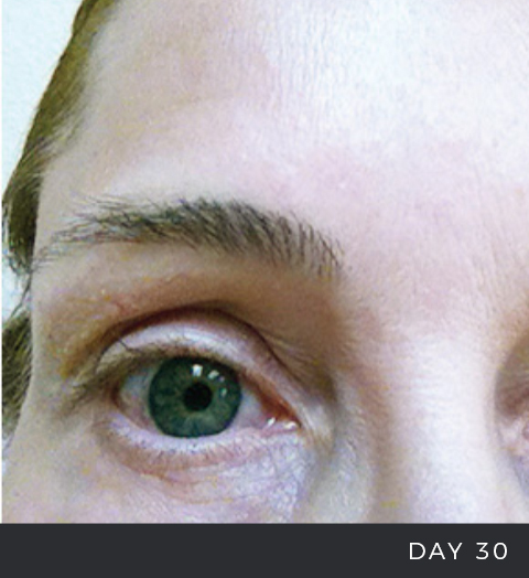 Before & After - Fraxel Laser Scarring