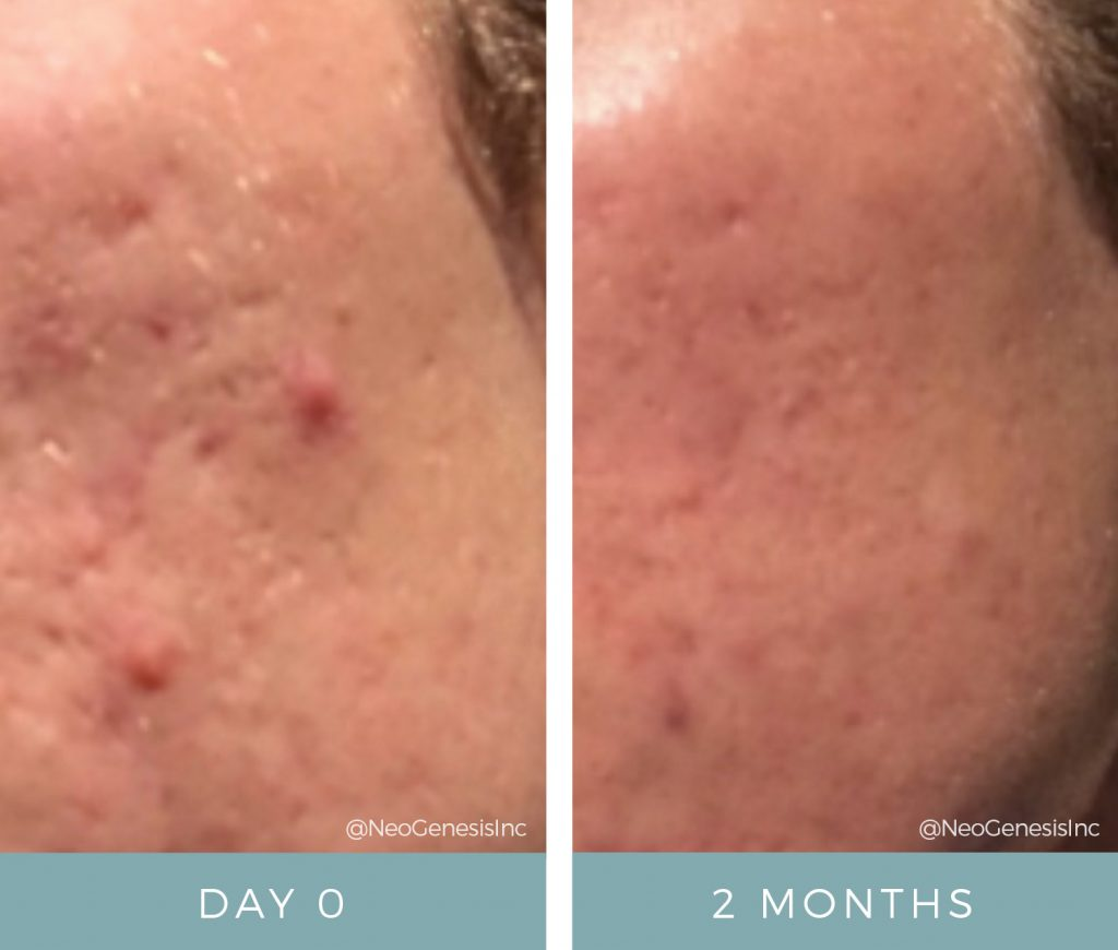 Before + After - Acne