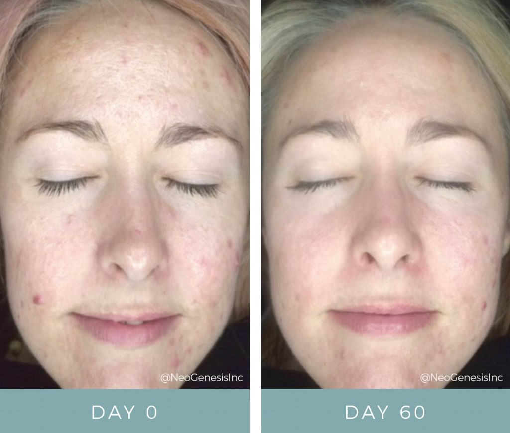 Acne - Before + After