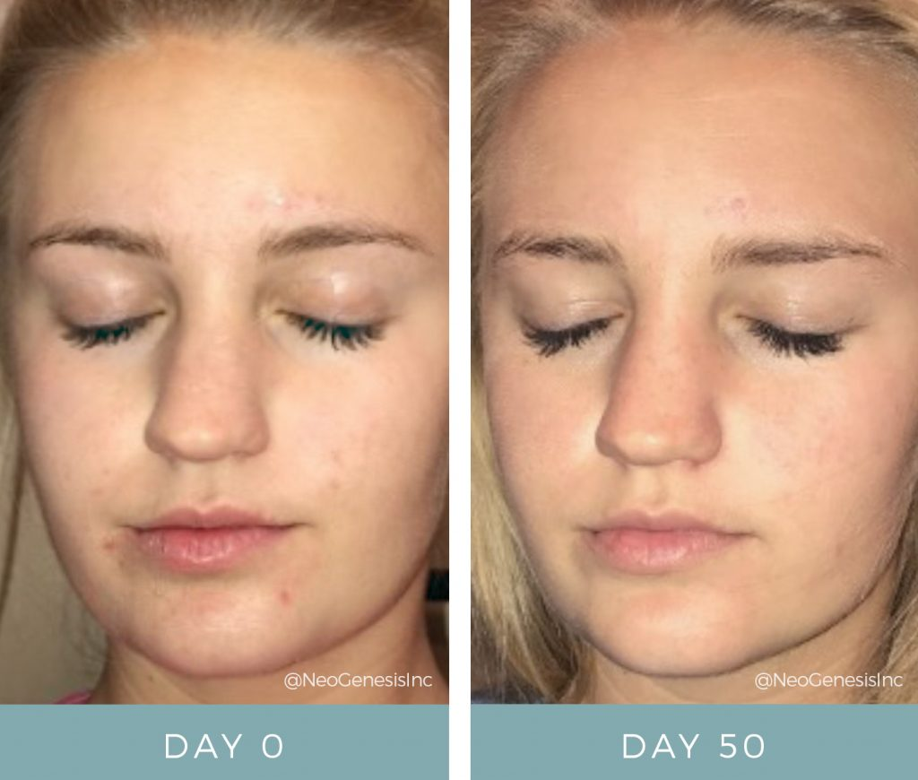Before & After - Acne