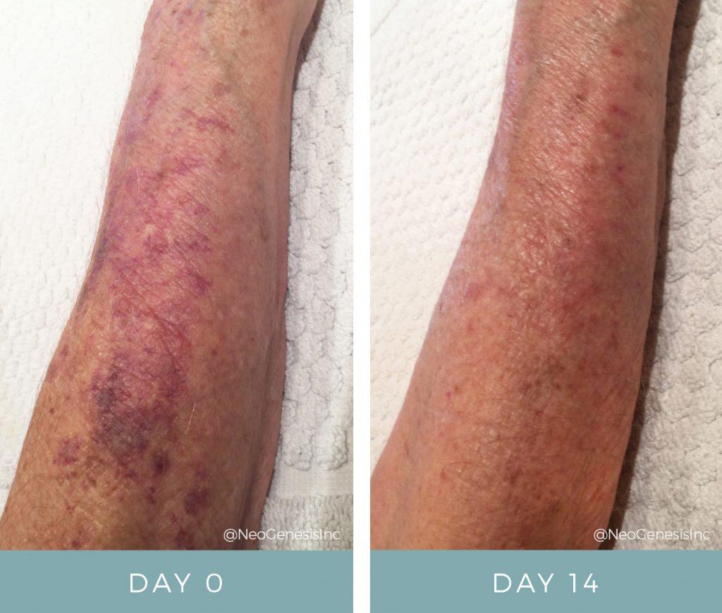Before & After - Actinic Purpura