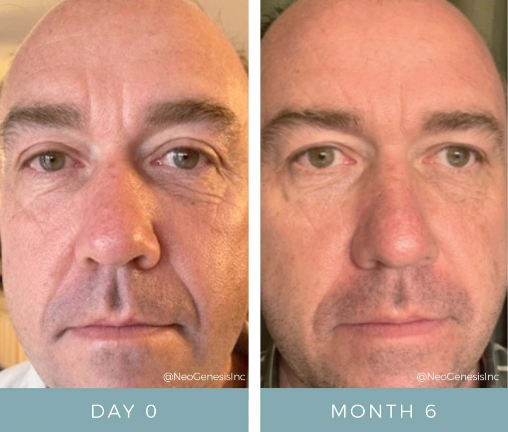 Before + After - Aging Face - Male