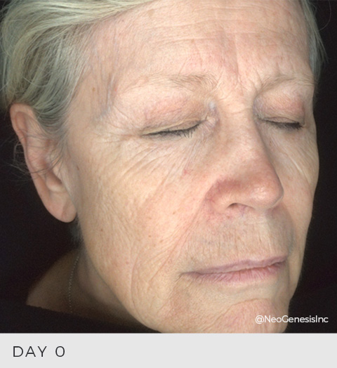 Before & After Review - Anti-Ageing
