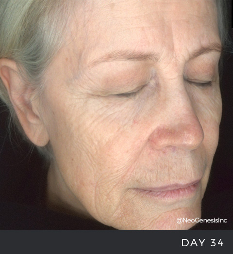 Before + After - Ageing Skin