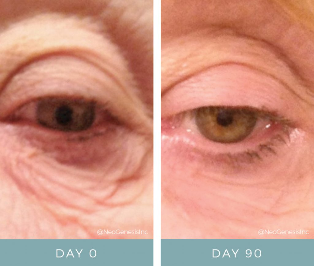 Before & After - Aging Skin - Eye
