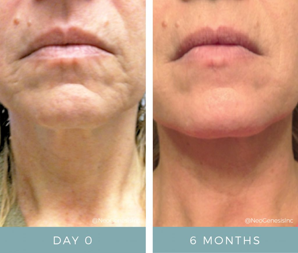 Before & After - Aging Skin - Face