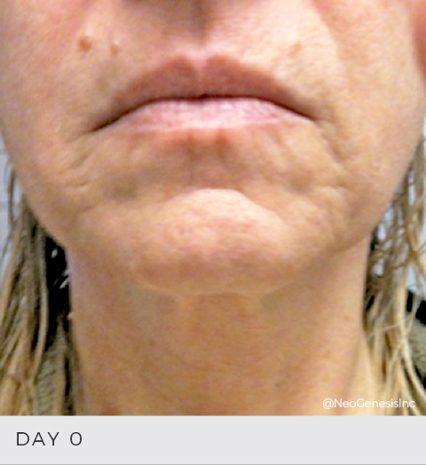 Before + After - Aging Skin
