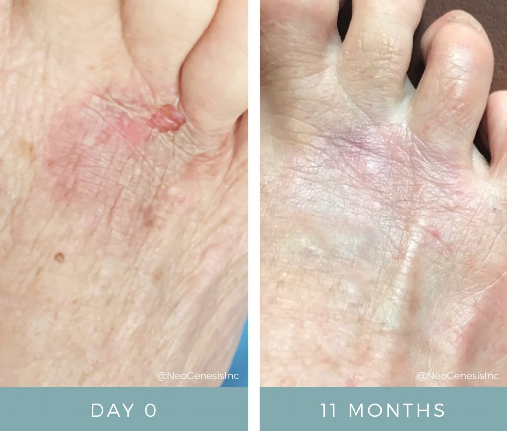 Before + After - Burns - Wound Care
