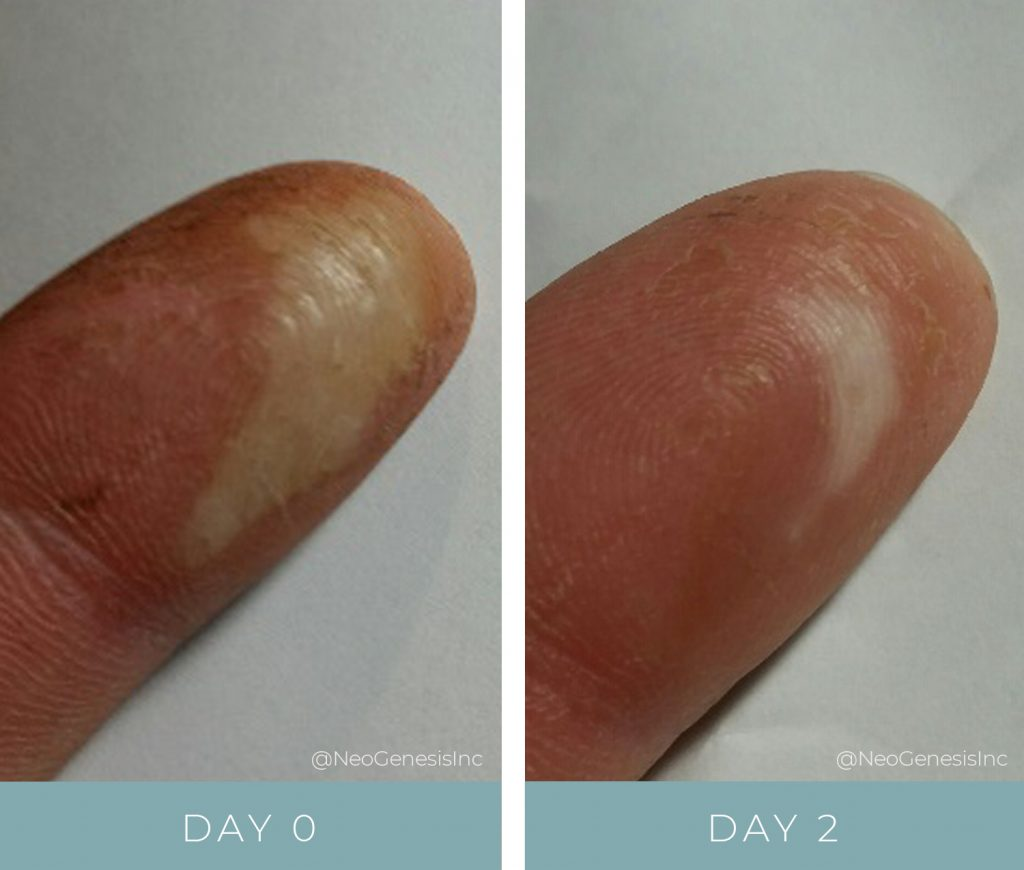 Before + After - Burn - Wound Care