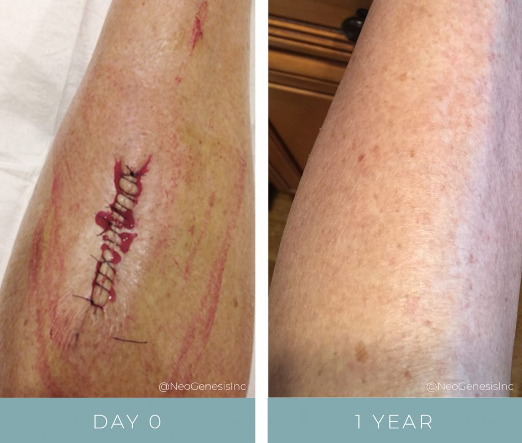 Before + Afters - Post Cancer Surgery Scar Reduction
