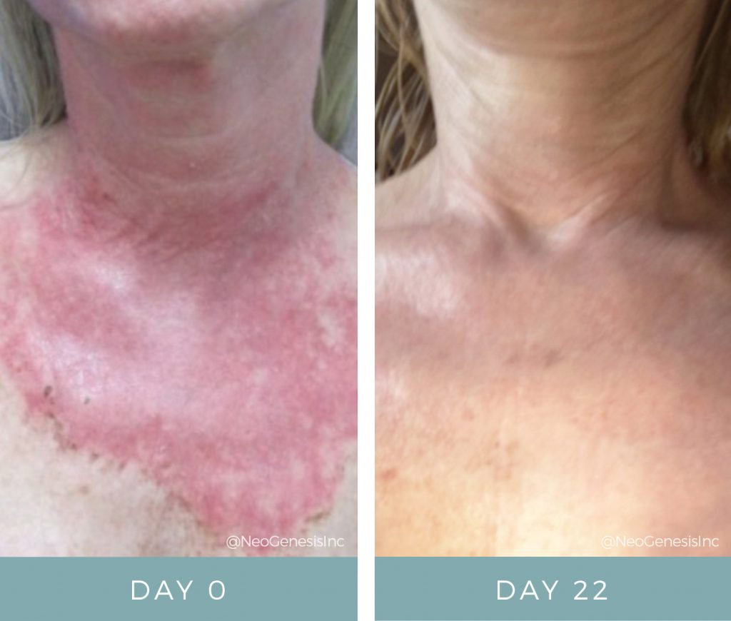 Before & After - Radiation + Chemical Peel