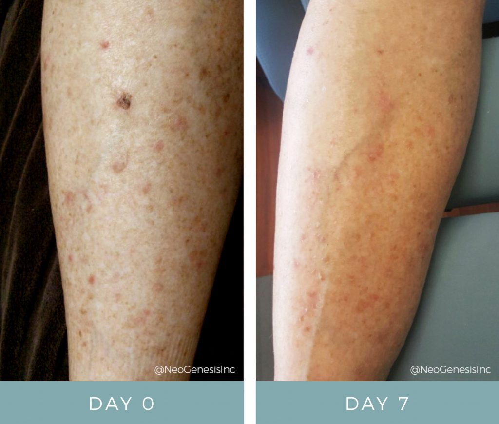 Before & After - Chemo Rash