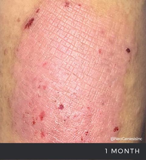 Before + After - Dermatitis