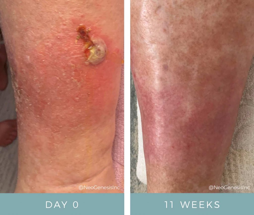 Before + After - Diabetic Ulcers