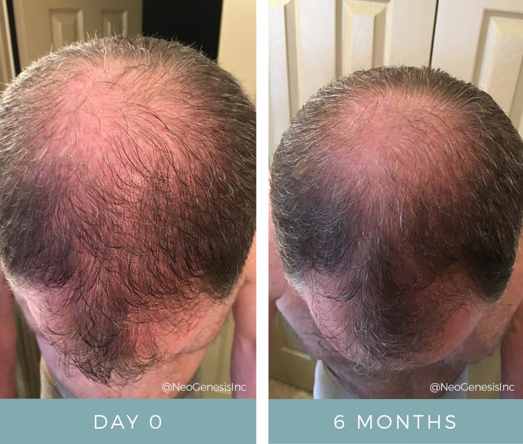 Before + After - Hair Loss