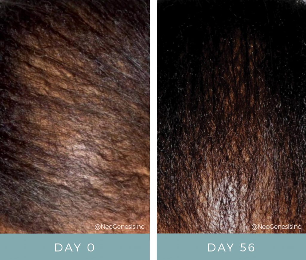 Before & After - Hair Loss