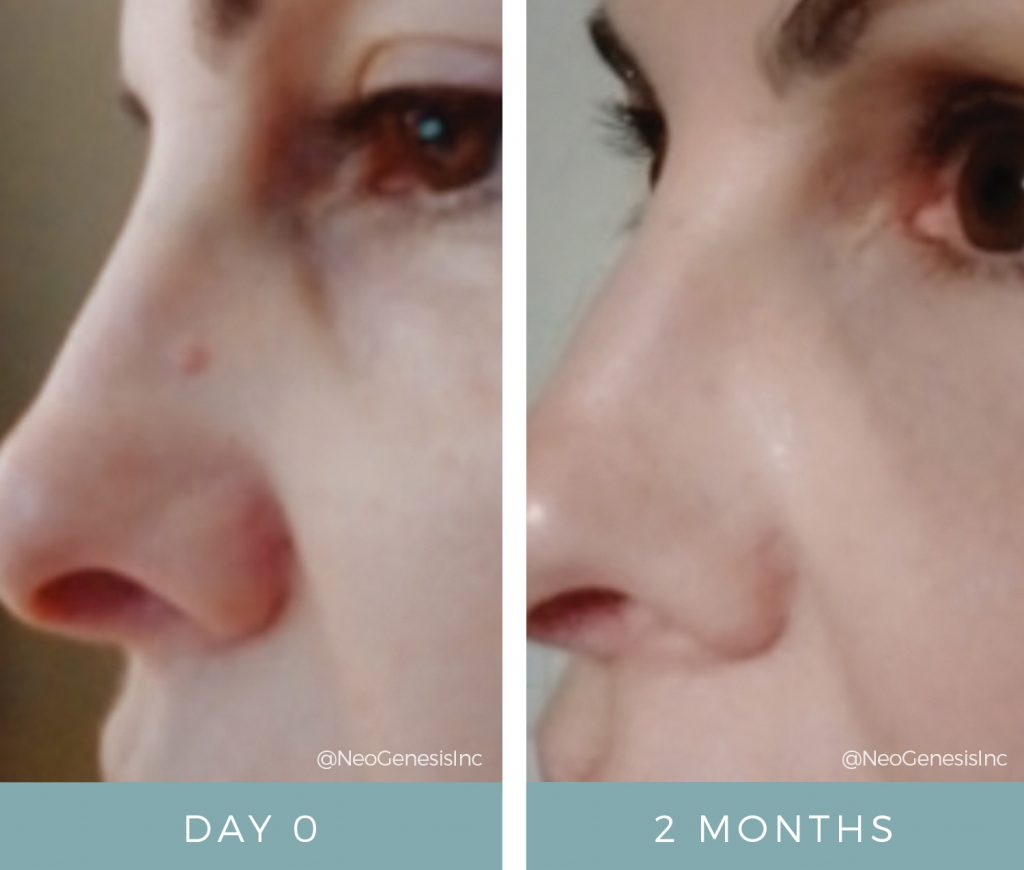 Before + After - Hyperkeratosis