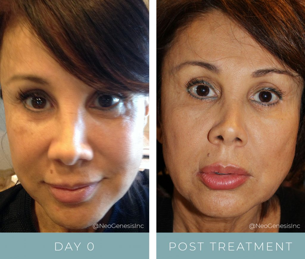 Before + After - Hyperpigmentation