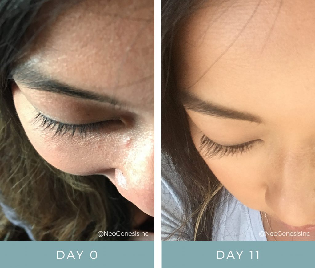 Before + After - Lash Loss
