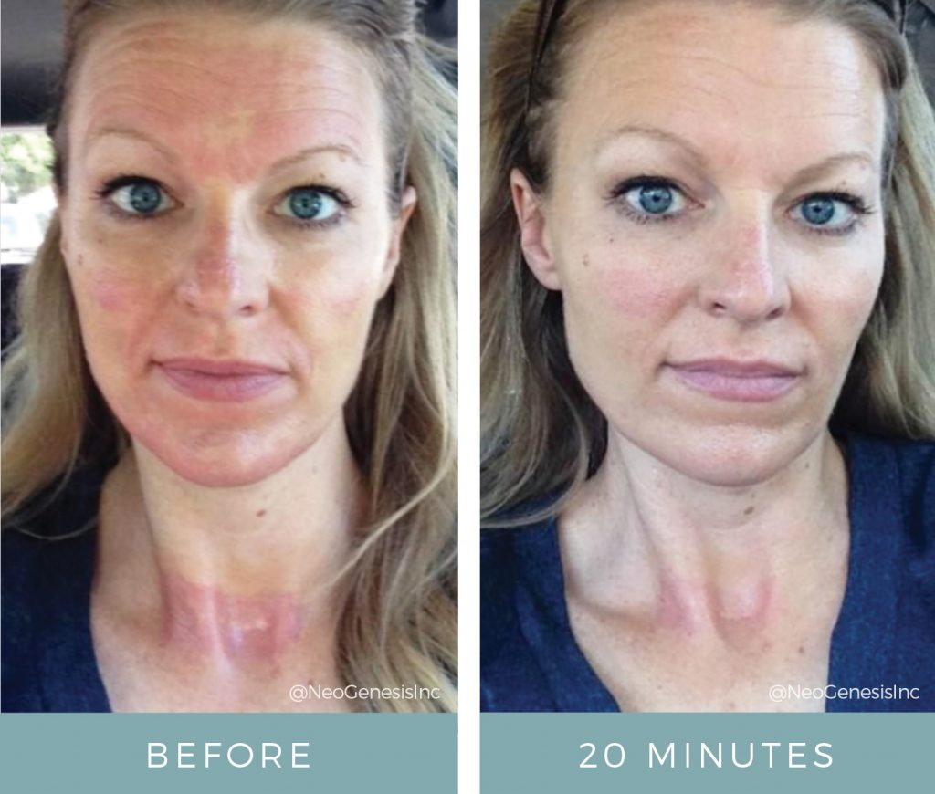 Before & After - Microneedling