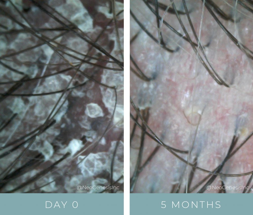 Before + After - Psoriasis