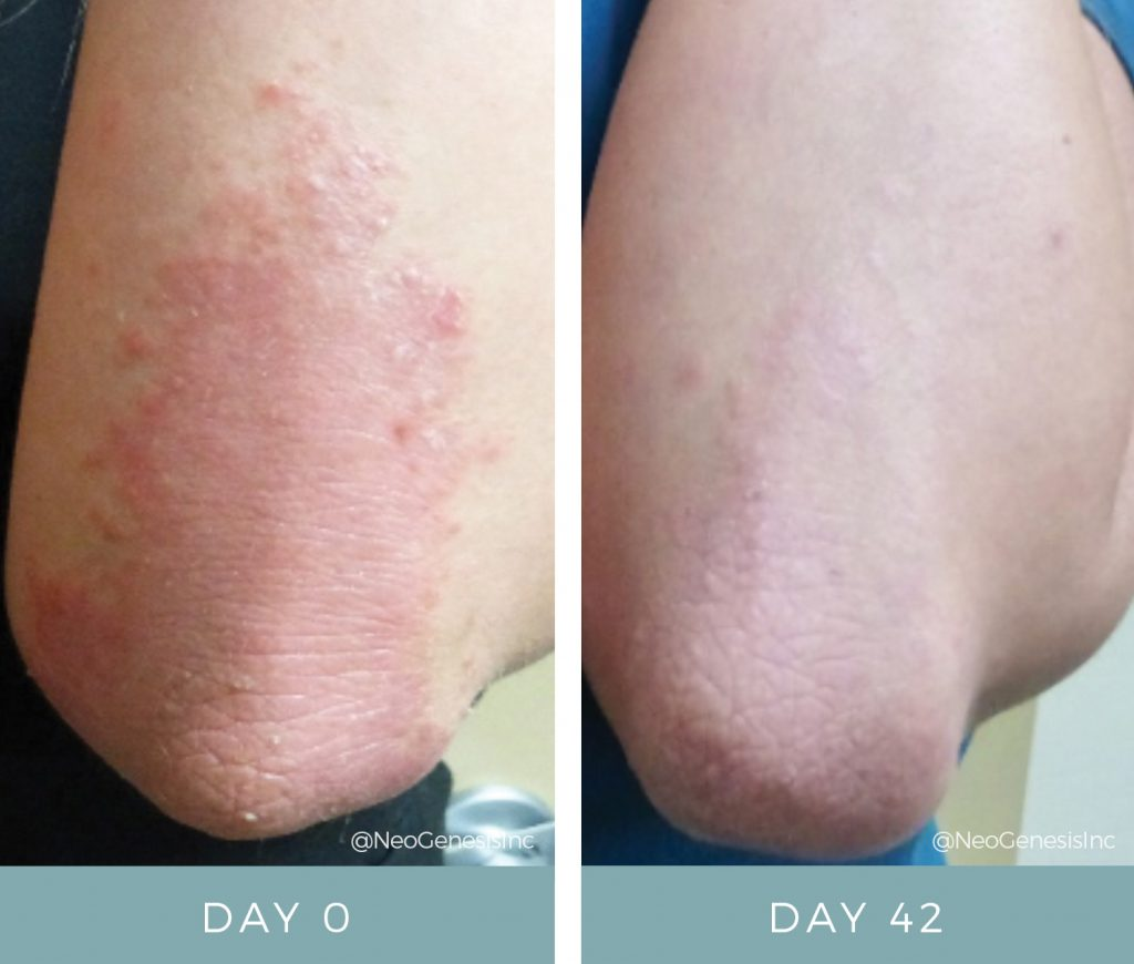 Before & After - Psoriasis